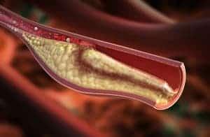 Walnussöl gegen Cholesterin
